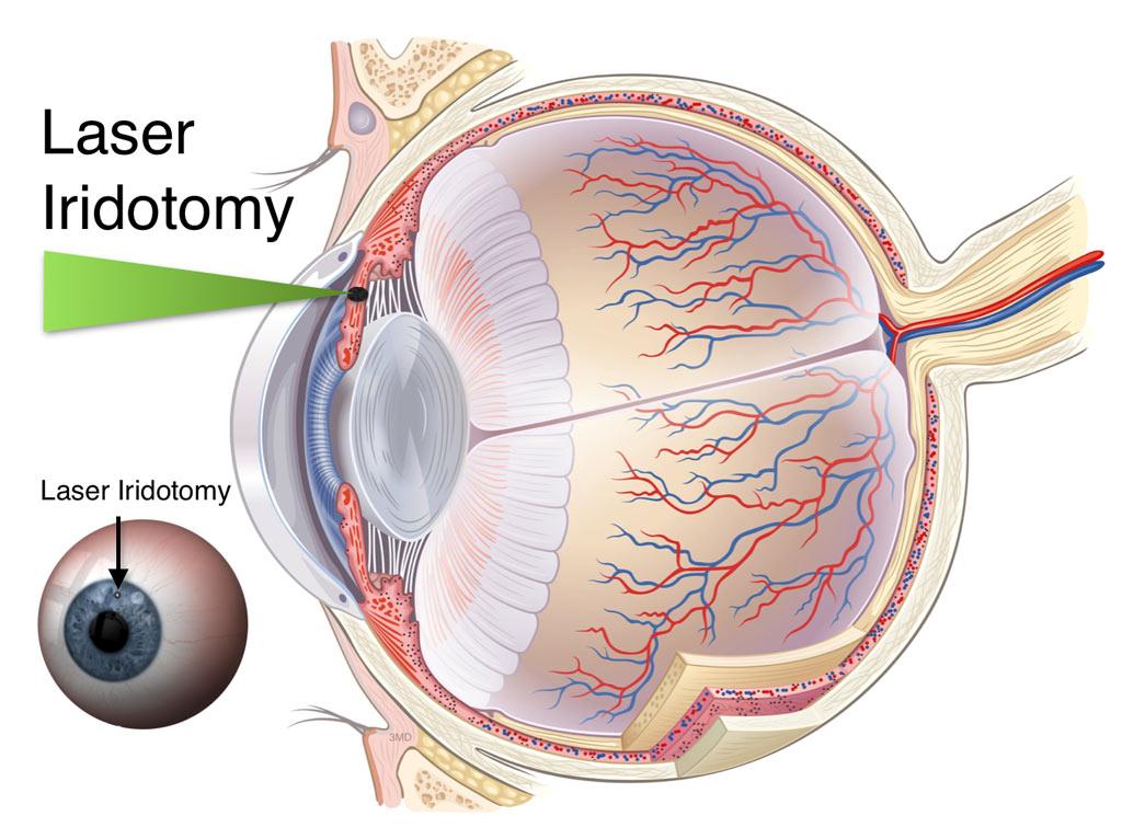 laser-iridotomy-diaram