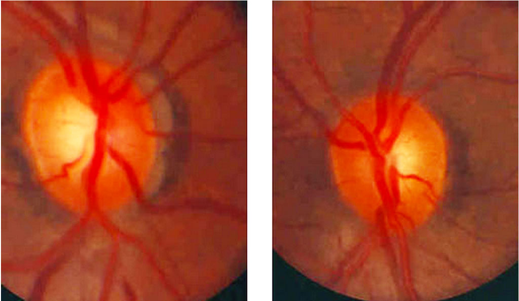 moderate-cupping-optic-nerve-glaucoma