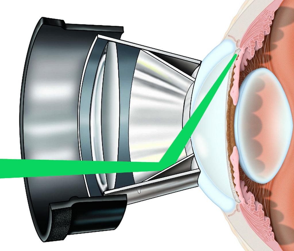 slective-laser-trabeculoplasty