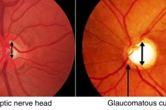 glaucoma-cupping