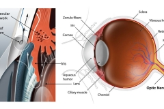 glaucoma-diagnosis-