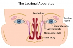 tearing-lacrimal-duct-and-sac-